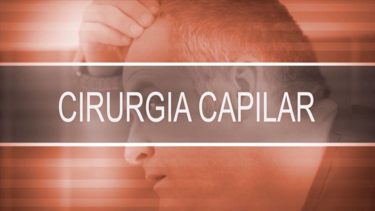 Cirurgia capilar