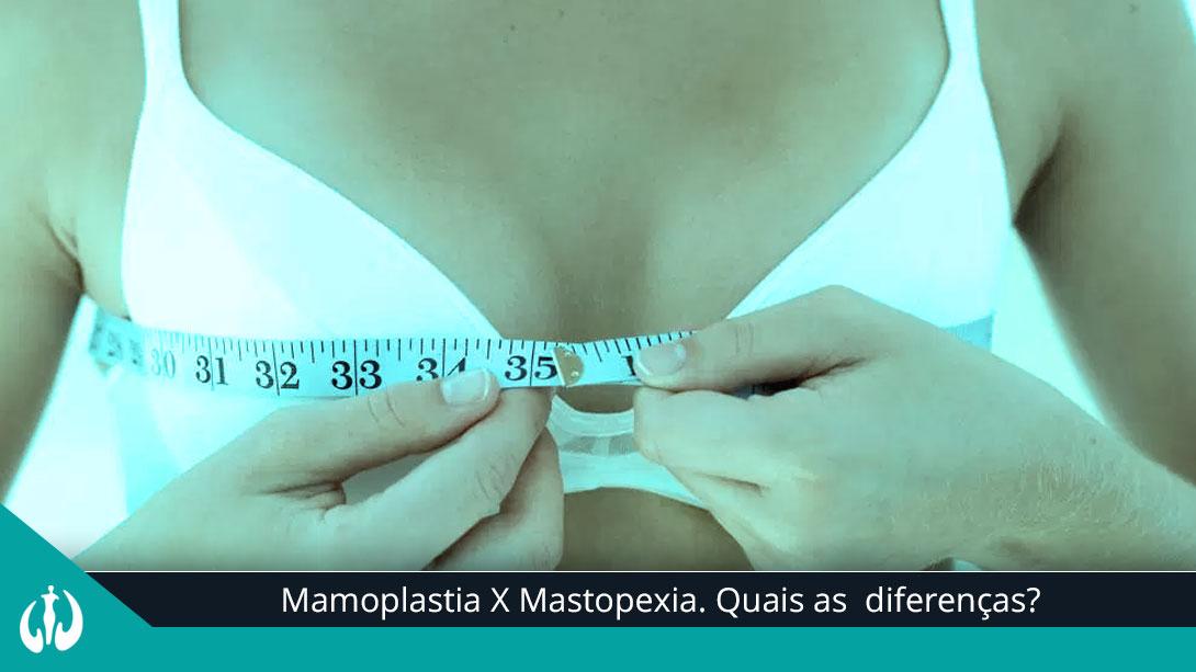 808865062 Mamoplastia X Mastopexia. Quais as diferenças  - Cirurgia Plástica BH