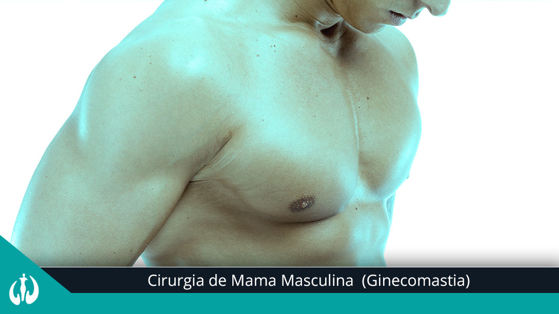 Ginecomastia &#8211...