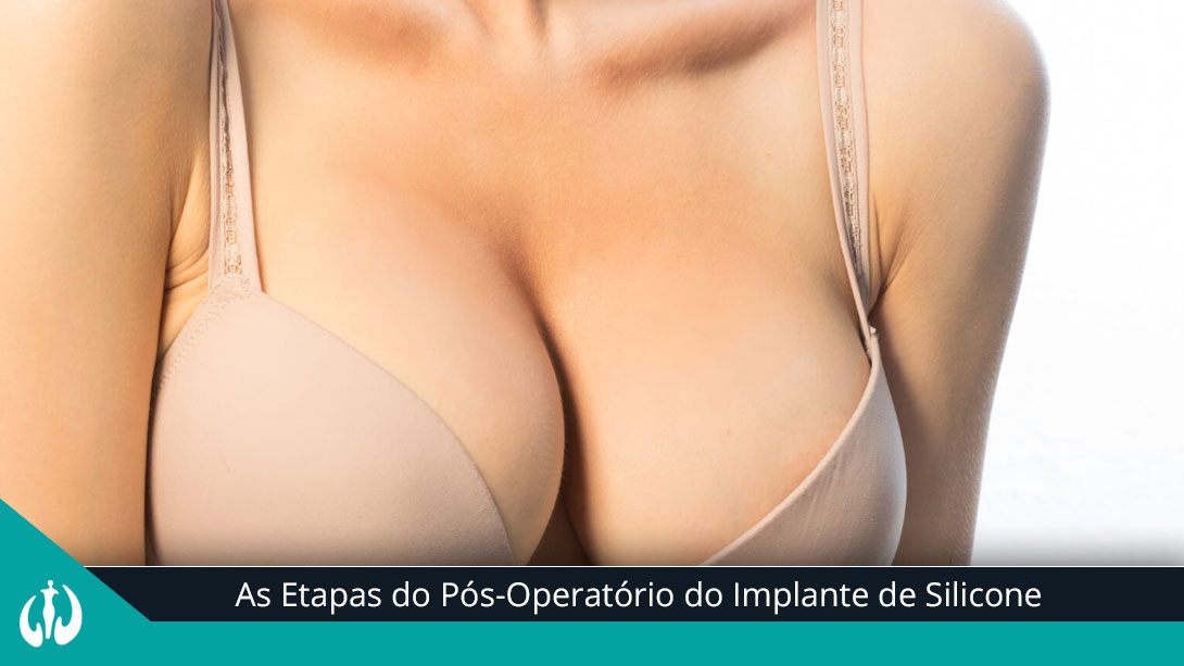 As Etapas do Pós-O...