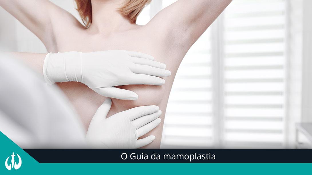 O Guia da mamoplast...